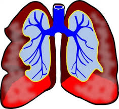 Mesothelioma Resources
